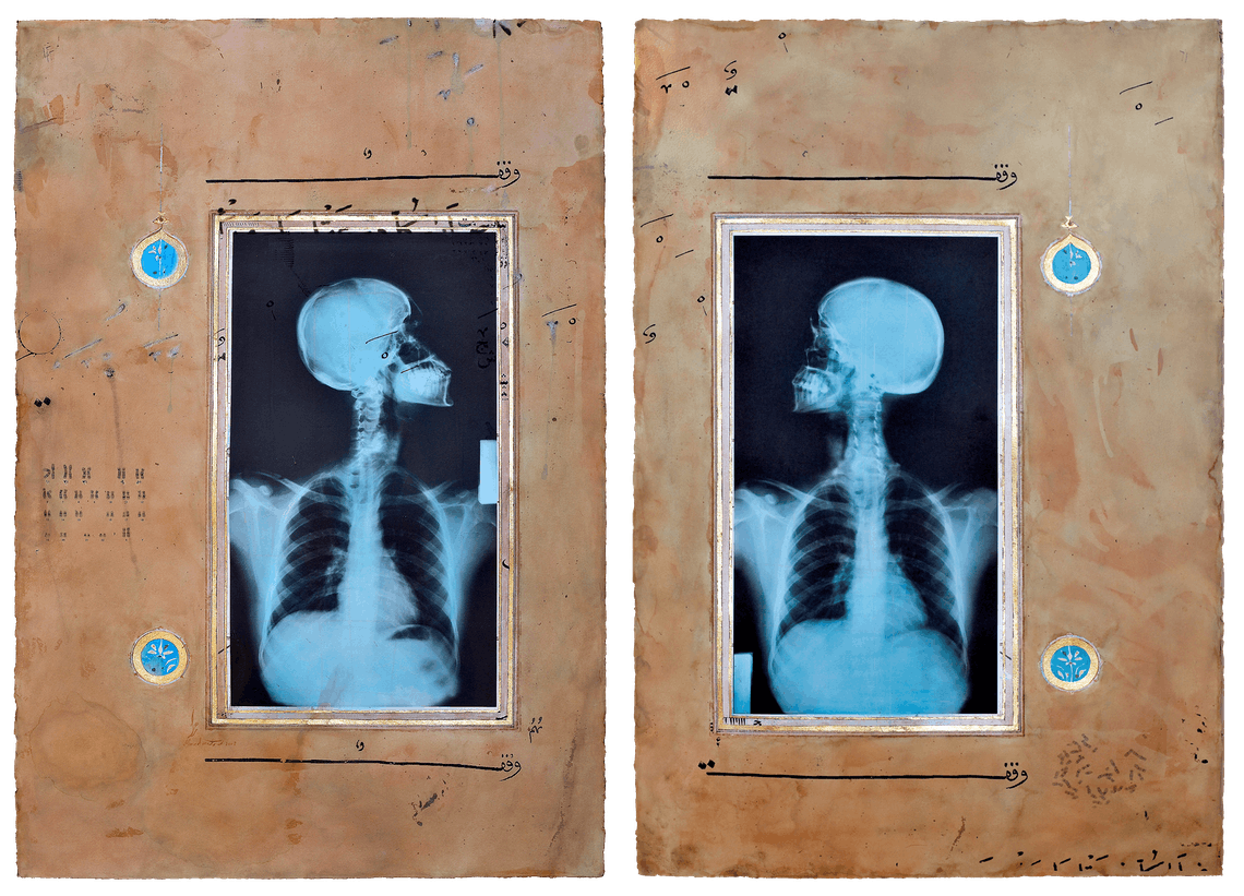 Illumination Diptych I II 2008 Ahmed Mater Gold leaf tea pomegranate Dupont Chinese ink and offset X Ray print and mixed media on archival A Arche paper two pieces each 165 x 110 cmjpg copy