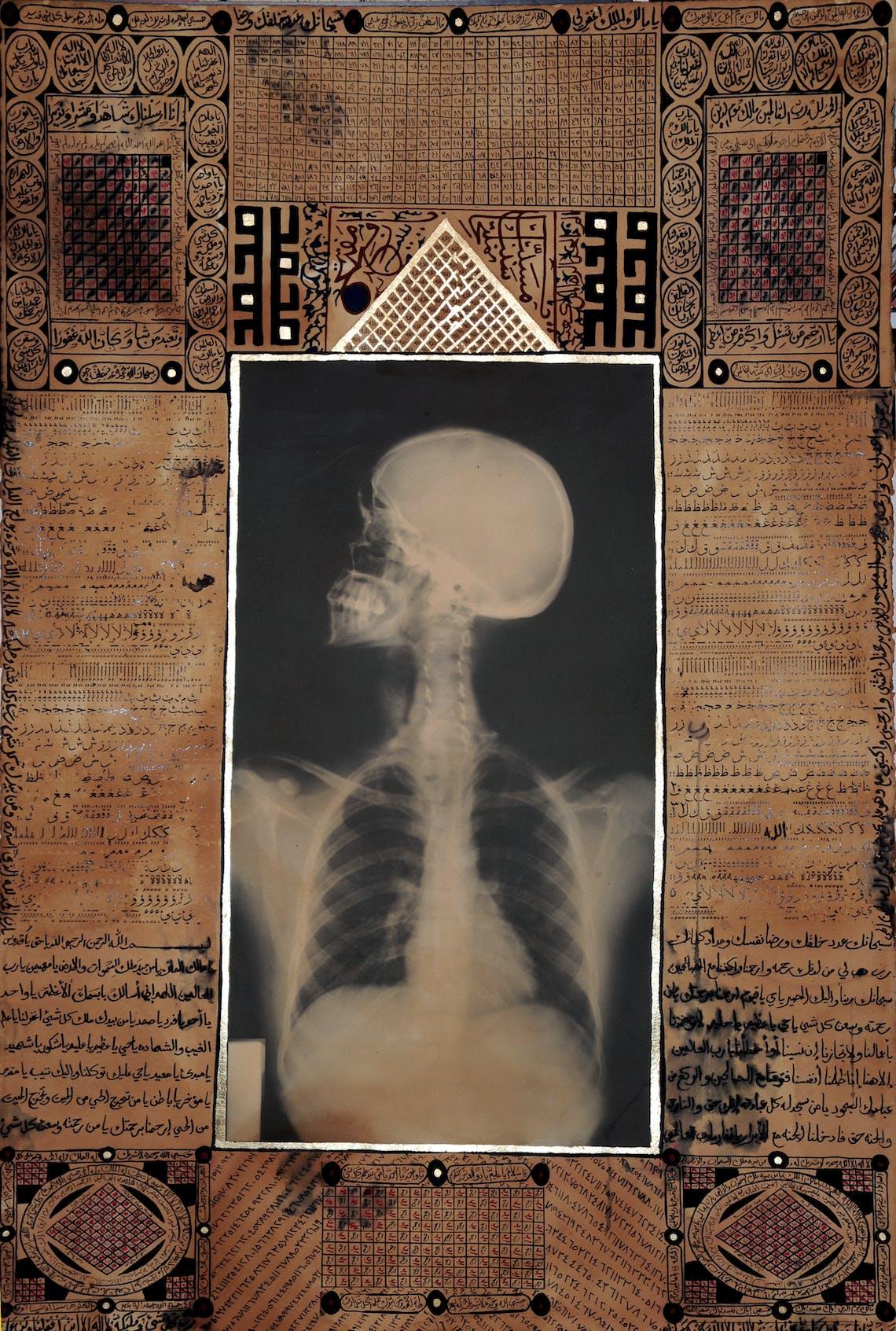 Talisman X Ray V 2009 155 x 105