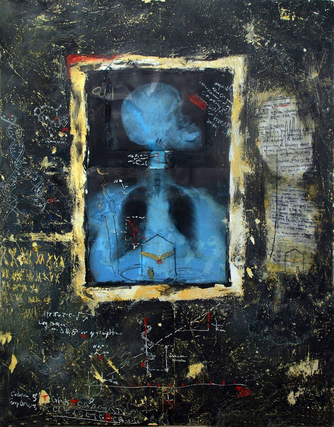 X Ray 3 Ahmed Mater 2003 Mixed media and X ray film on canvas 135 x 105 cm The British Museum collection